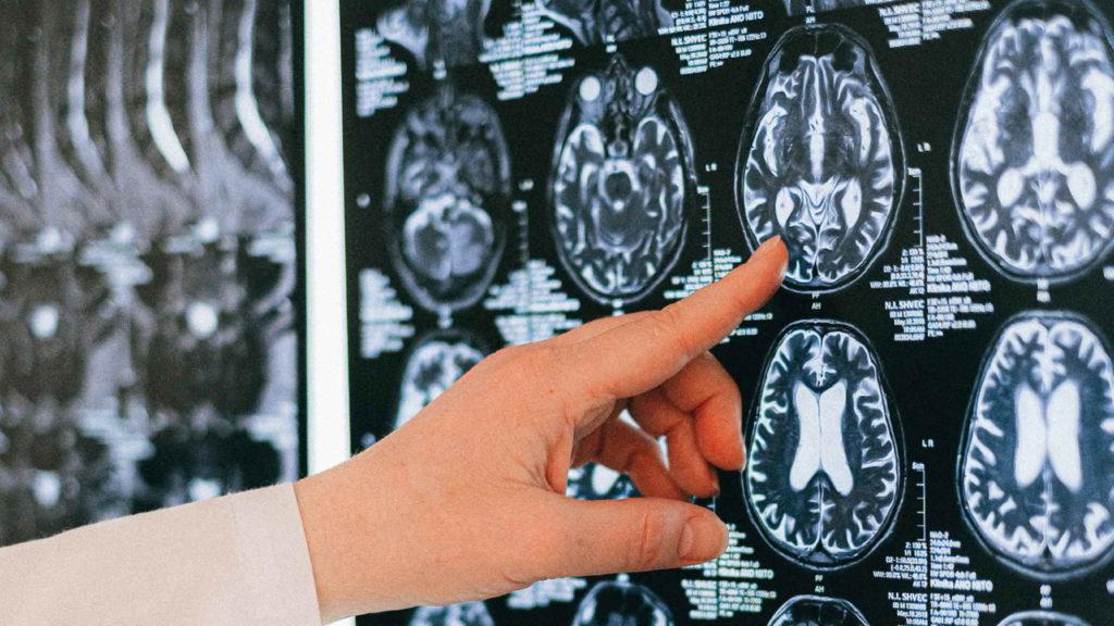 Врач пальцем показывает на томограмму головного мозга